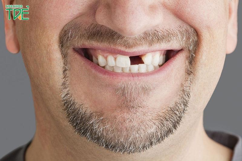 Trường hợp mất 1 răng thì có thể làm cầu răng sứ để phục hình