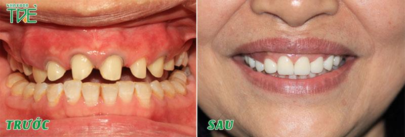 Mài cùi răng đạt tỷ lệ chuẩn để làm răng sứ sát khít và đều đẹp