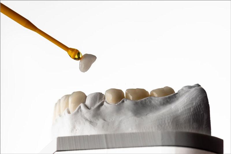 Làm răng sứ phải mài cùi răng để làm trụ răng sứ