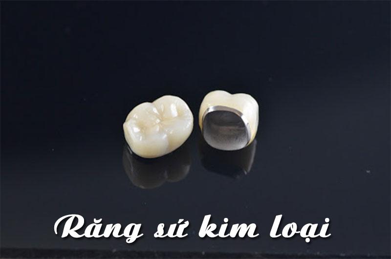 Răng sứ kim loại có giá thành thấp hơn các loại răng sứ toàn sứ