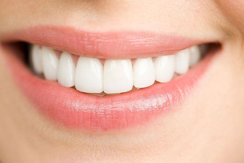 Làm sạch mảng bám cao răng giúp răng trắng sáng hơn