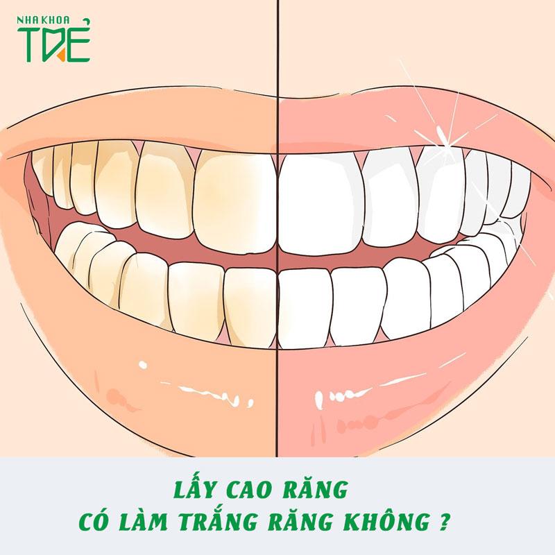 Lấy cao răng có làm trắng răng không? Có nên lấy cao răng thường xuyên?