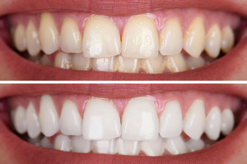 Răng bị nhiễm màu cần tẩy trắng răng để khắc phục