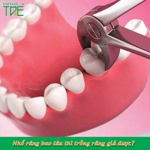 Nhổ răng bao lâu thì trồng răng được?
