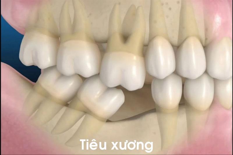 Mất răng lâu ngày không trồng lại sẽ dẫn đến tiêu xương hàm, xô lệch răng