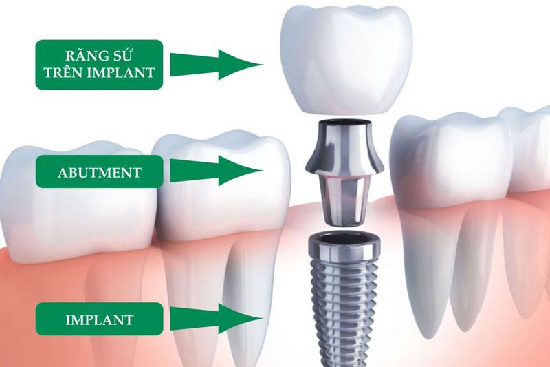 Răng Implant có cấu tao tương tự răng thật