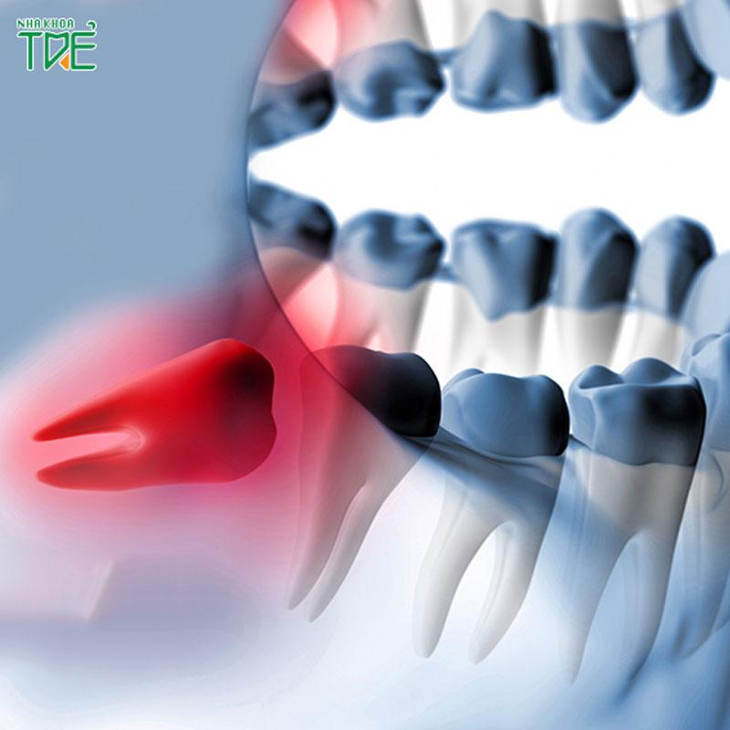 Nhổ răng khôn có nguy hiểm không? Có ảnh hưởng đến dây thân kinh không?