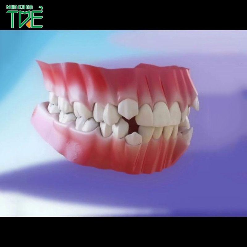 Niềng 2 răng khểnh như thế nào?