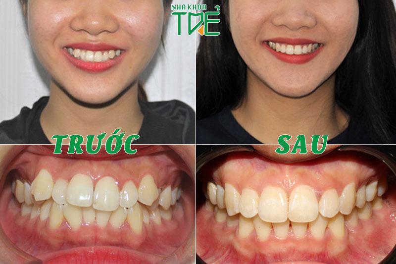 Kết quả khách hàng niềng răng khấp khểnh tại Nha khoa Trẻ