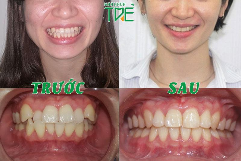 Chị Nguyễn Thị Nga niềng răng khắc phục răng lệch lạc, răng khểnh