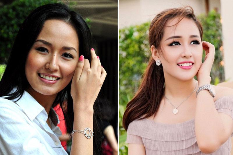Hoa hậu Mai Phương Thúy niềng răng đẹp cỡ nào?