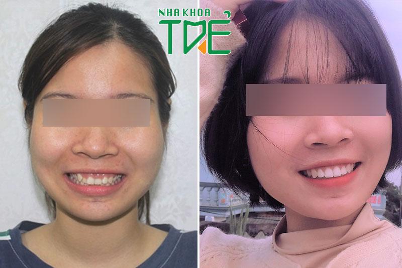 Hình ảnh trước và sau niềng răng lệch lạc của Đặng Phương Anh