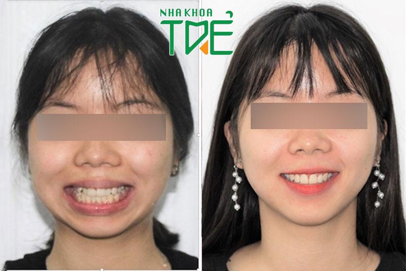 Thay đổi sau niềng răng khấp khểnh của chị Đặng Thị Chinh