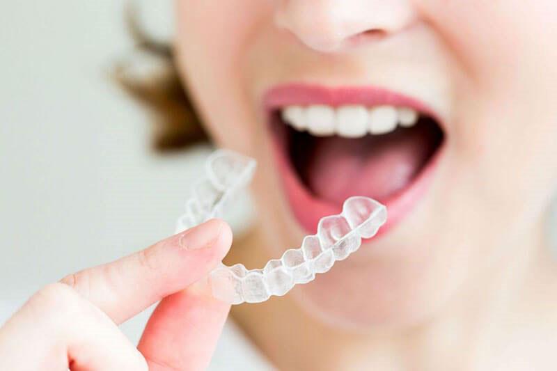 Niềng răng Invisalign có đau không?