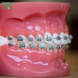 Tại sao niềng răng mắc cài 3M lại được ưa chuộng? Giá mắc cài 3M bao nhiêu?