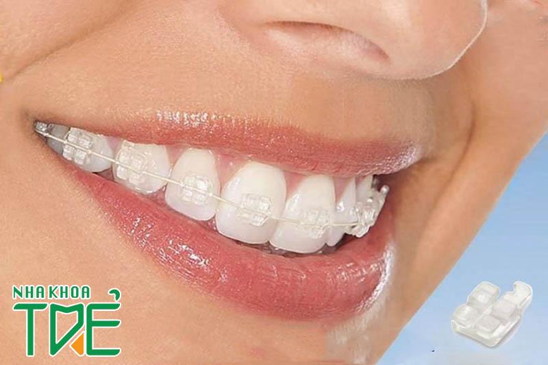 Niềng răng mắc cài bằng sứ có hiệu quả không?