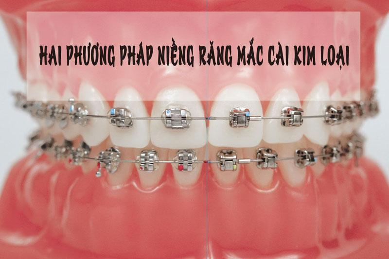 Có thể lựa chọn niềng răng mắc cài kim loại thường hoắc mắc cài kim loại tự buộc