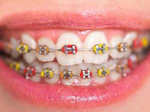 Niềng răng mắc cài kim loại giá bao nhiêu tiền?
