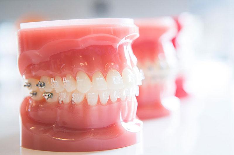 Phương pháp niềng răng mắc cài sứ tự đóng, tự buộc