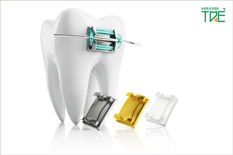 So sánh niềng răng mắc cài sứ và kim loại theo từng tiêu chí cụ thể