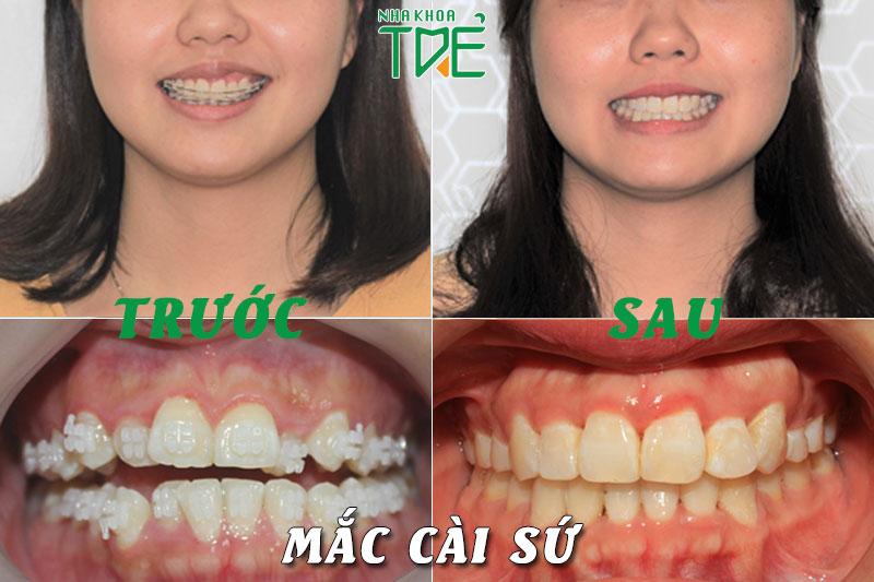 niềng răng mắc cài sứ 3M
