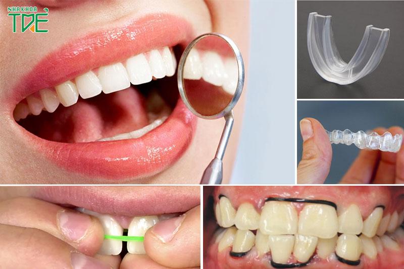 Niềng răng tại nhà có thật sự hiệu quả? Nguy cơ tiềm ẩn của việc niềng răng tại nhà