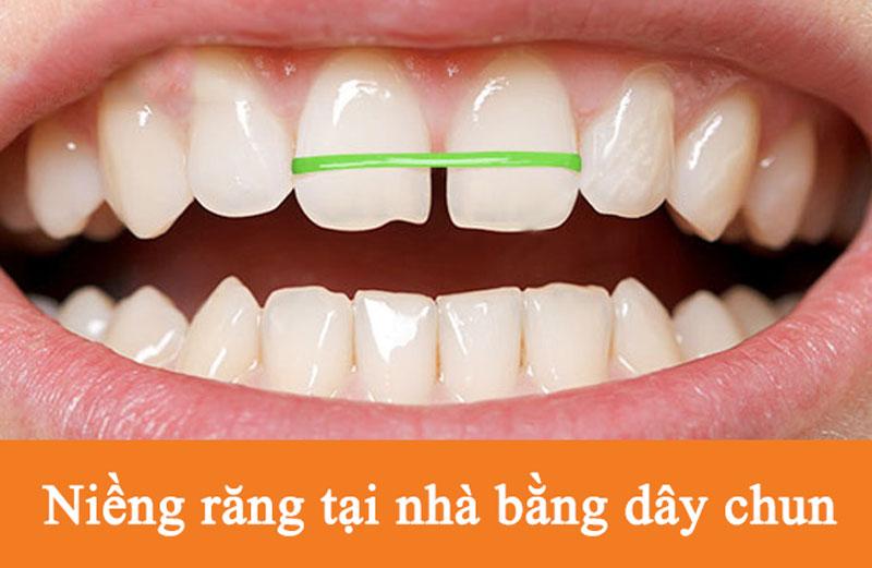 Niềng răng tại nhà bằng dây thun khá phổ biến