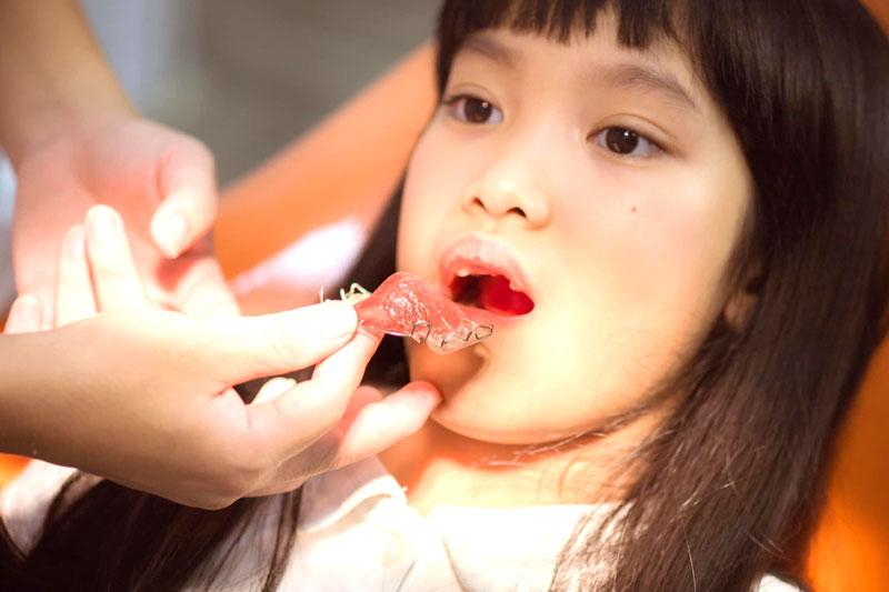 Niềng răng tháo lắp kim loại được áp dụng cho trẻ em nhằm nắn chỉnh răng và điều chỉnh cung hàm