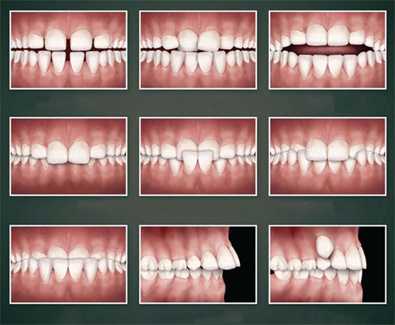 Các trường hợp sai lệch răng và khớp cắn thường gặp trong 3 mức độ niềng răng tháo lắp