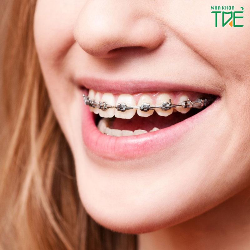niềng răng tiếng anh là gì