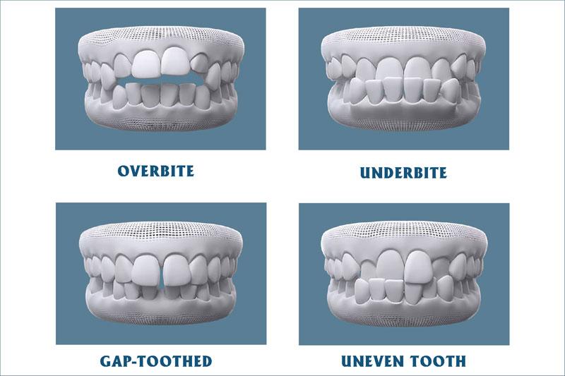 các tình trạng sai lệch răng cần niềng răng chỉnh nha để khắc phục