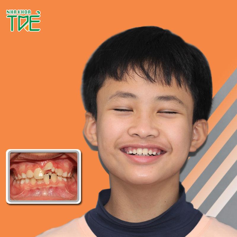 Niềng răng cho trẻ em có đau không?
