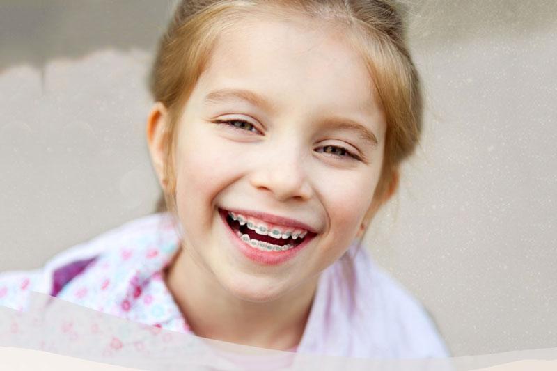 """Độ tuổi """"vàng"""" nên niềng răng cho trẻ em là từ 6 - 17 tuổi"""