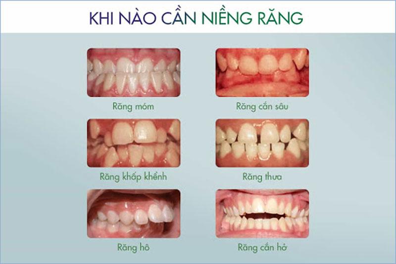 Các sai lệch răng và sai khớp cắn cần niềng răng để khắc phục triệt để