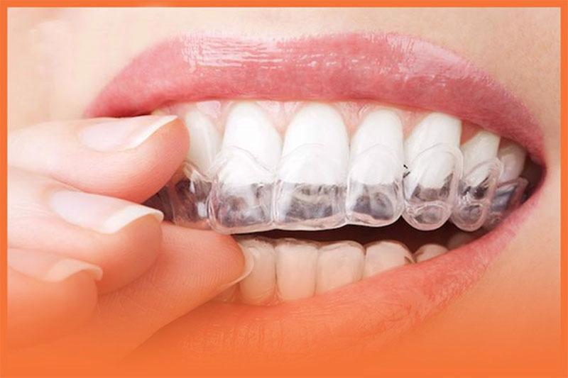 Niềng răng trong suốt giá rẻ có nên không? Có hiệu quả không?
