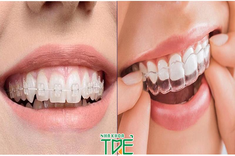 Niềng răng trong suốt và niềng răng mắc cài trong suốt có giống nhau không?
