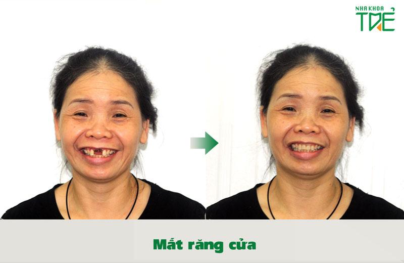 Khách hàng trồng răng Implant tại vị trí 2 răng cửa