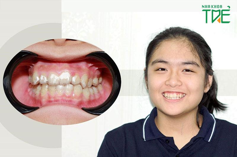 Niềng răng trong suốt cho trẻ em tại Nha khoa Trẻ