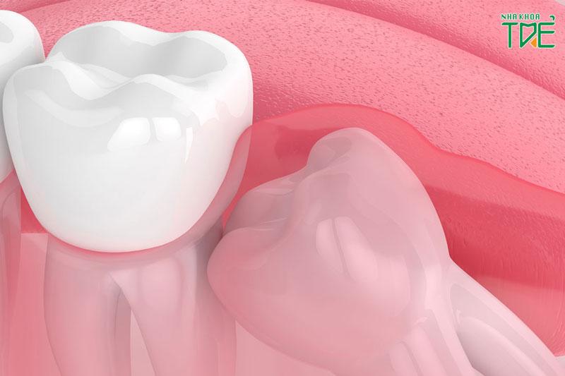 Răng khôn thường có xu hướng mọc ngầm, mọc lệch gây nguy hại cho sức khỏe