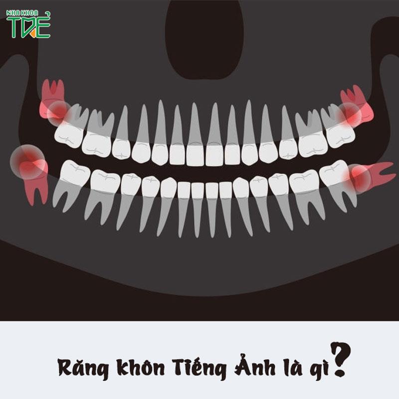 Răng khôn tiếng anh là gì? Một số mẫu câu giao tiếp thường gặp trong nha khoa