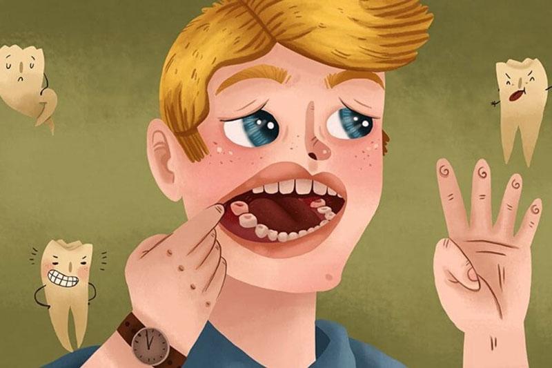 Đau răng khôn là biểu hiện thường gặp khi mọc răng khôn