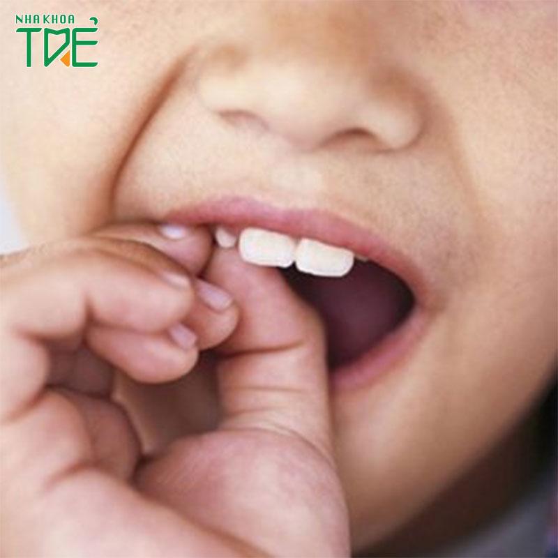 Răng sữa không lung lay có nên nhổ không?