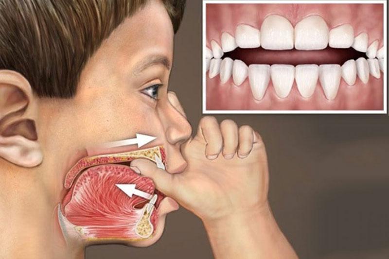 Thói quen mút tay gây hại cho sự phát triển của răng và cấu trúc xương hàm