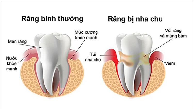 Viêm nha chu khiến răng lỏng lẻo và dễ gãy rụng