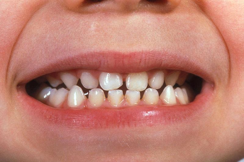 """Răng sữa có tỷ lệ thân răng về chiều ngang lớn hơn chiều cao nên trông sẽ """"mập"""" hơn răng vĩnh viễn"""