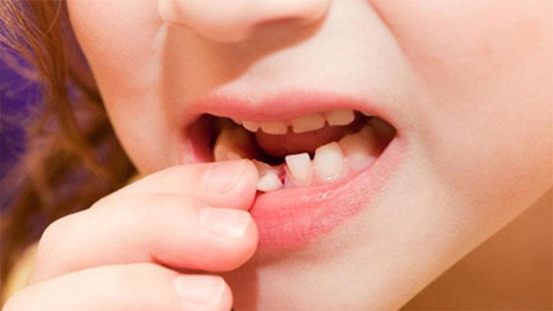 Răng sữa và răng vĩnh viễn có tác động hỗ trợ nhau trong suốt quá trình thay răng