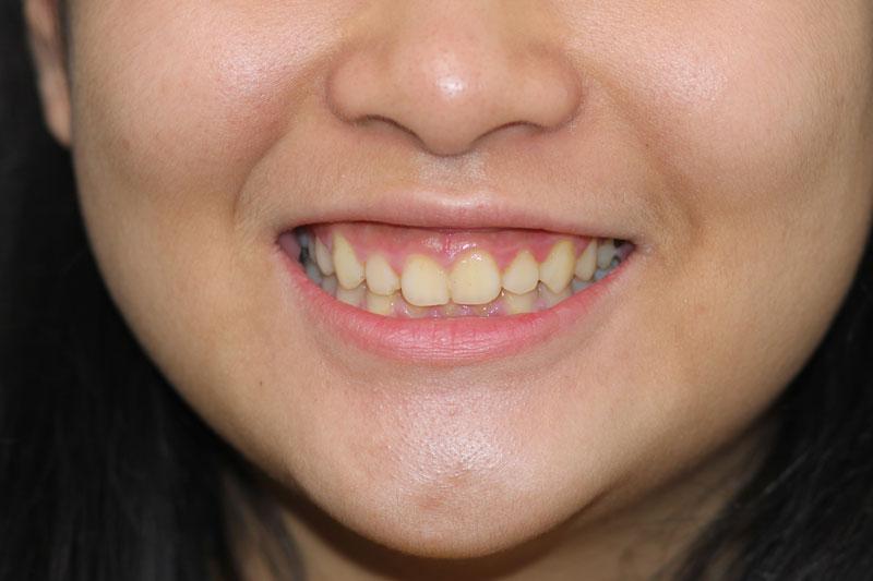 Răng bị ố vàng sau niềng răng thường là do chế độ chăm sóc răng miệng không đúng cách