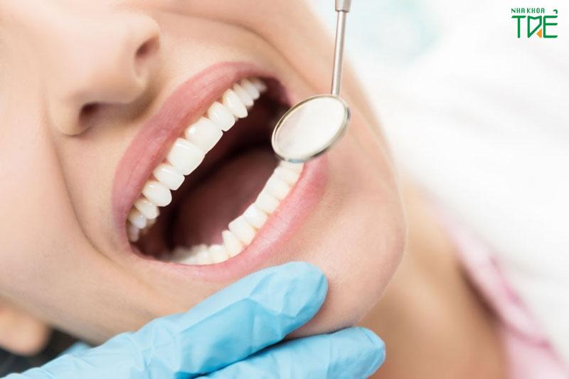 Tẩy trắng răng sau khi niềng có hại không?