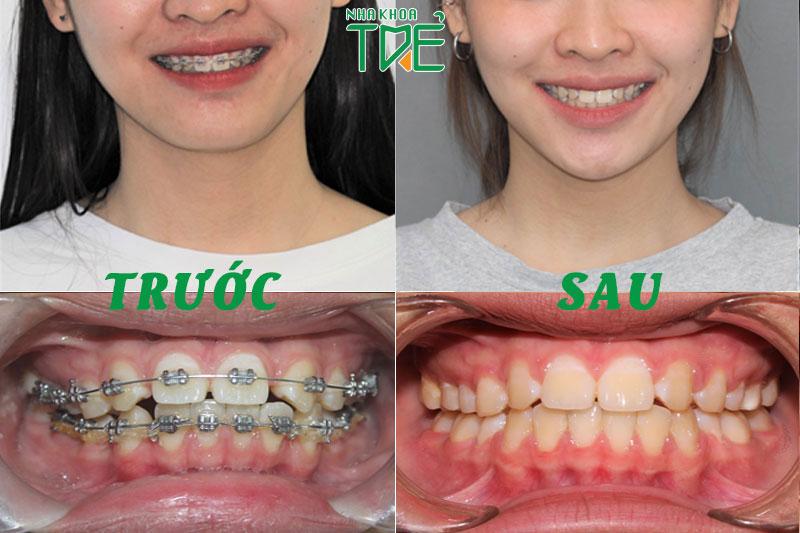 Niềng răng điều chỉnh lệch khớp cắn về khớp cắn chuẩn