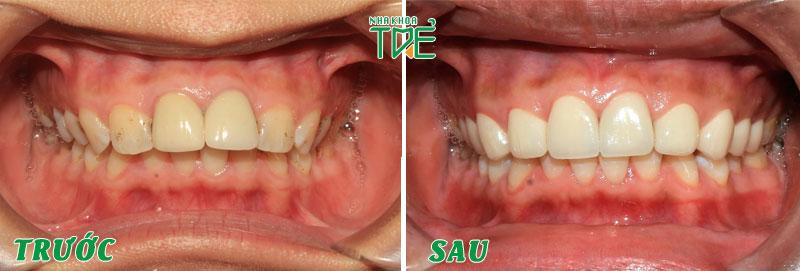 Bọc răng sứ được áp dụng trong các trường hợp sai khớp cắn nhẹ